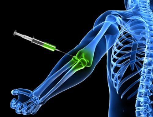 PRP & Elbow Epicondylitis